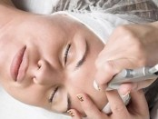 microdermabrasion-for-facial-rejuvenation